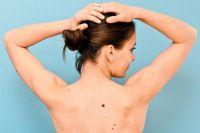 Порой даже небольшая травма или царапина может привести к весьма неприятным последствиям.