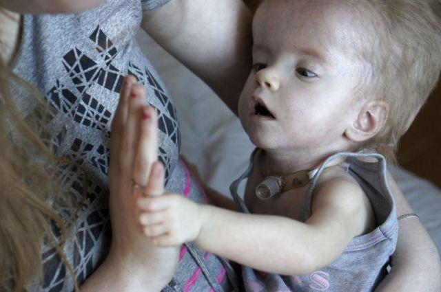 Многодетной семье нужны деньги на лечение тяжелобольной дочки.