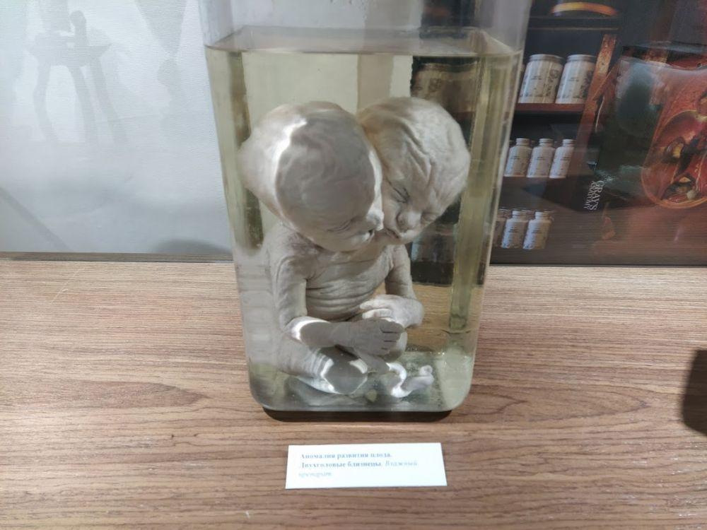 Музей медуниверситета представил, пожалуй, самые яркие и вместе с тем страшные экспонаты – аномалии плода человека: заспиртованных сиамских близнецов.