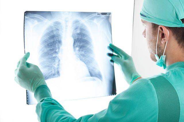 У большинства скончавшихся причина смерти - ковидная пневмония.