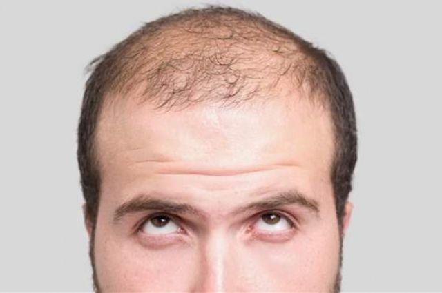 Ученые назвали средство от выпадения волос