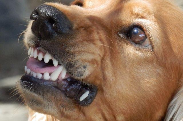 Собака сорвалась с цепи и покусала женщину в станице Ессентукской