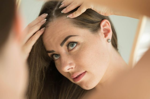 Жалобы на выпадение волос после коронавируса – одни из самых частых у пациентов, которые обращаются к врачам-трихологам.
