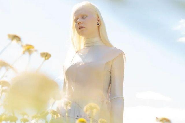 Модель Анастасия Пяткова родилась с глазокожным альбинизмом.