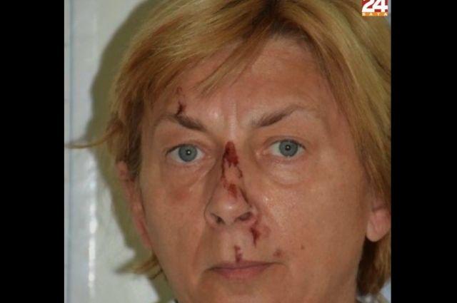 Незнакомка, найденная на острове Крк в Хорватии.