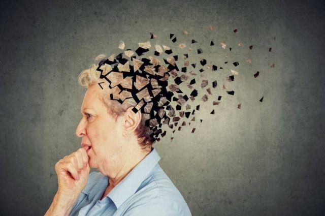 Врачи рассказали, кого чаще поражает болезнь Альцгеймера